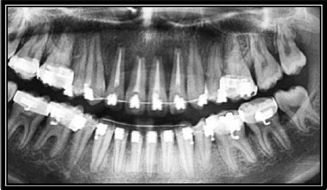 Iatrogenic Damage to the Periodontium Caused by
